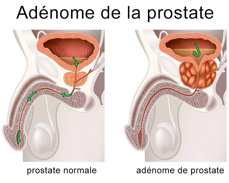 Rabotage de la prostate, opérer l'adénome de la prostate en ambulatoire