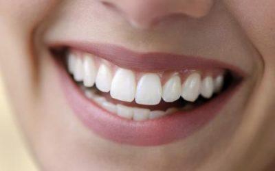 Comment garder les dents blanches naturellement ?